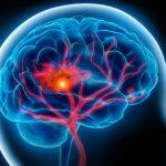 کاهش سن سکته مغزی در ایران/ علامتهای بیماری را بهتر بشناسید